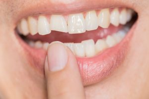Signs, Causes, and Treatment for Cracked Teeth